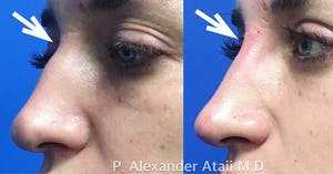 Results from Non-Surgical Nose Job in San Diego