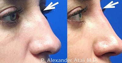Non-Surgical Rhinoplasty Gallery - Patient 24560832 - Image 2