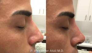 Results from Non-Surgical Rhinoplasty in San Diego