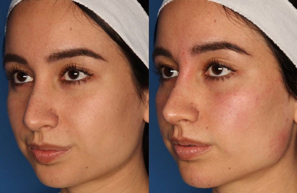 Non-Surgical Rhinoplasty Gallery - Patient 24560853 - Image 1