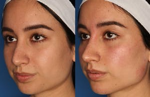Results from Non-Surgical Rhinoplasty in La Jolla