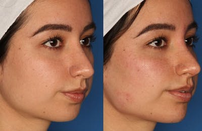 Non-Surgical Rhinoplasty Gallery - Patient 24560853 - Image 2