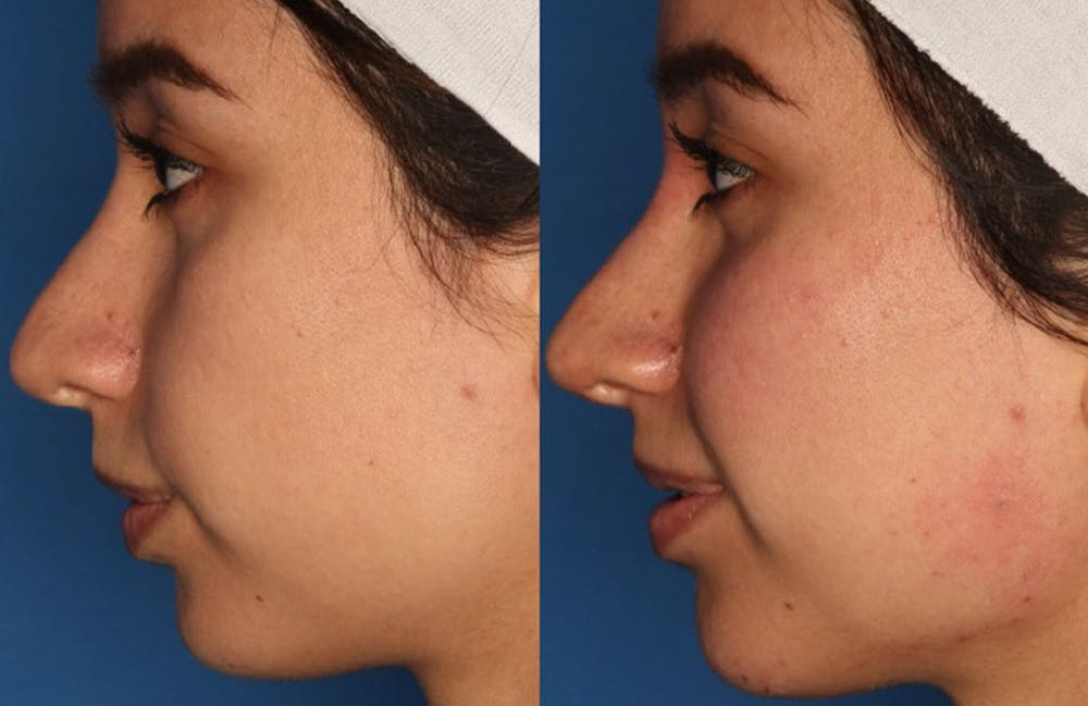 Non-Surgical Rhinoplasty Gallery - Patient 24560853 - Image 3