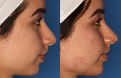 Non-Surgical Rhinoplasty Gallery - Patient 24560853 - Image 4