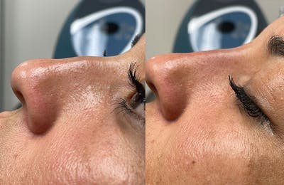 Non-Surgical Rhinoplasty Gallery - Patient 24560859 - Image 1