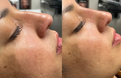 Non-Surgical Rhinoplasty Gallery - Patient 24560859 - Image 2