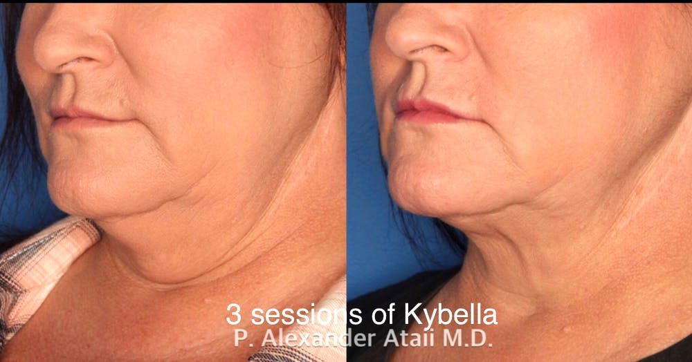Kybella Gallery - Patient 24560872 - Image 1