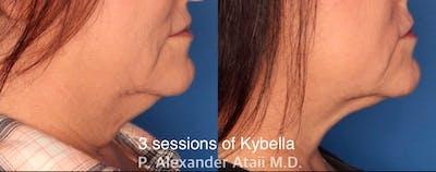 Kybella Gallery - Patient 24560874 - Image 1