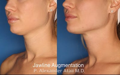 Chin Augmentation Gallery - Patient 24560880 - Image 1
