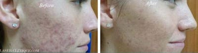 Acne Treatment Gallery - Patient 24560896 - Image 1