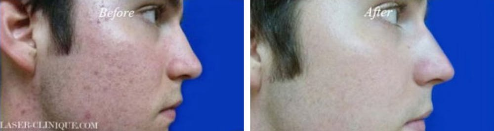 Acne Treatment Gallery - Patient 24560899 - Image 1