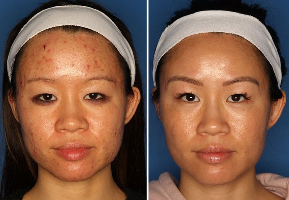 Acne Treatment Gallery - Patient 24560903 - Image 1