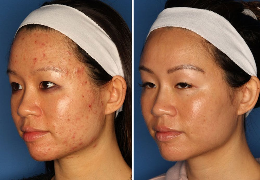Acne Treatment Gallery - Patient 24560903 - Image 2