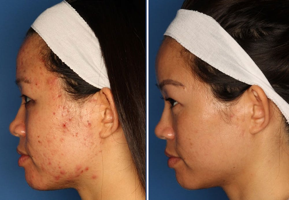 Acne Treatment Gallery - Patient 24560903 - Image 3