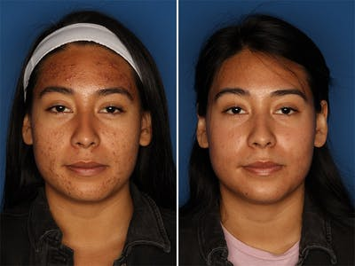 Acne Treatment Gallery - Patient 24560911 - Image 1