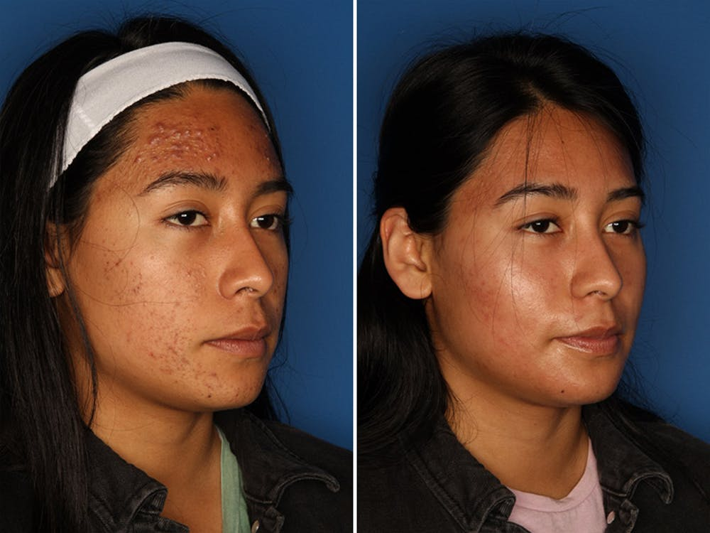 Acne Treatment Gallery - Patient 24560911 - Image 2