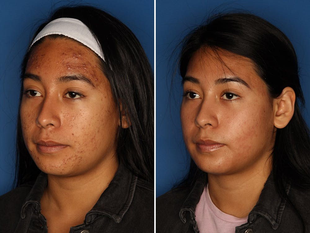 Acne Treatment Gallery - Patient 24560911 - Image 3