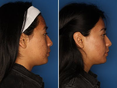 Acne Treatment Gallery - Patient 24560911 - Image 4