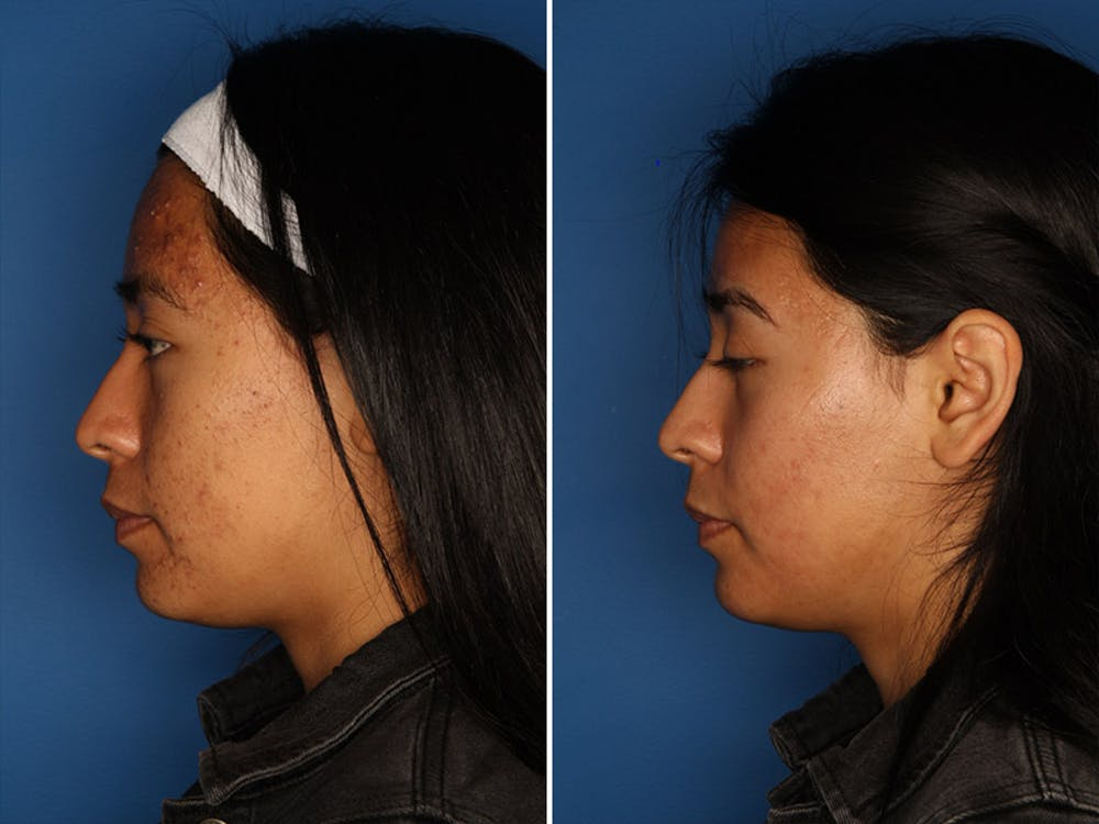Acne Treatment Gallery - Patient 24560911 - Image 5