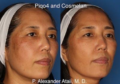 Cosmelan Peel Gallery - Patient 24560939 - Image 1