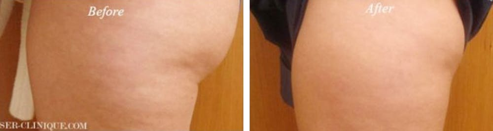 Fat & Cellulite Treatment / Mesoslim Gallery - Patient 24560932 - Image 1