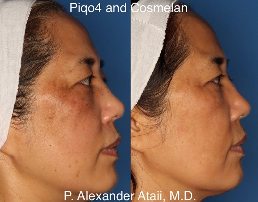 Cosmelan Peel Gallery - Patient 24560939 - Image 2