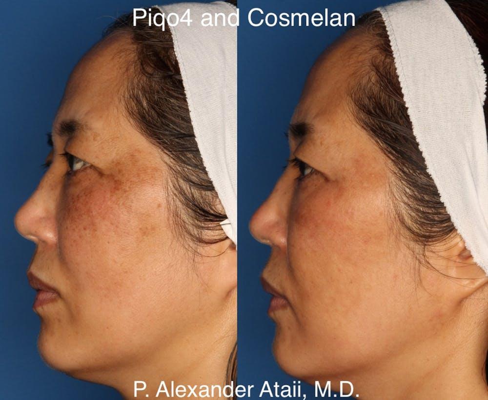 Cosmelan Peel Gallery - Patient 24560939 - Image 3
