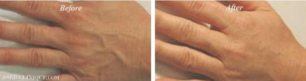 Hand Rejuvenation Gallery - Patient 24560943 - Image 1
