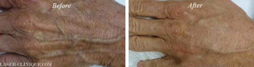 Hand Rejuvenation Gallery - Patient 24560944 - Image 1