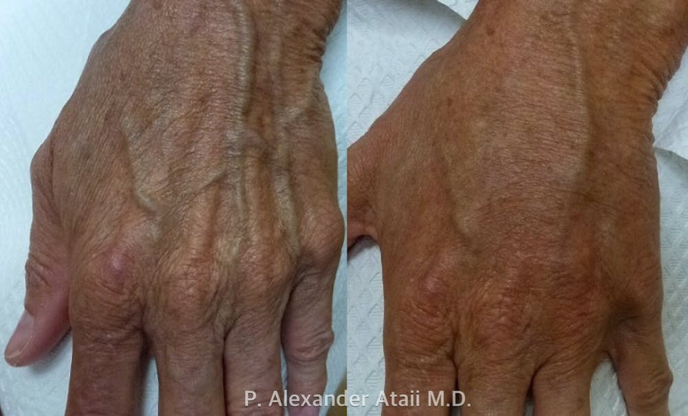 Hand Rejuvenation Gallery - Patient 24560945 - Image 1