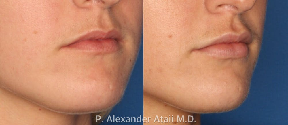Lip Augmentation Gallery - Patient 24560968 - Image 1
