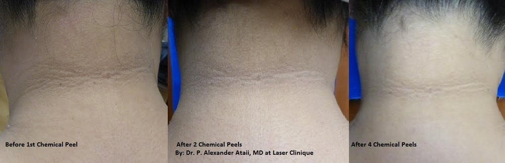 Medical Grade Chemical Peels Gallery - Patient 24560966 - Image 1