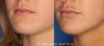 Lip Augmentation Gallery - Patient 24560968 - Image 2