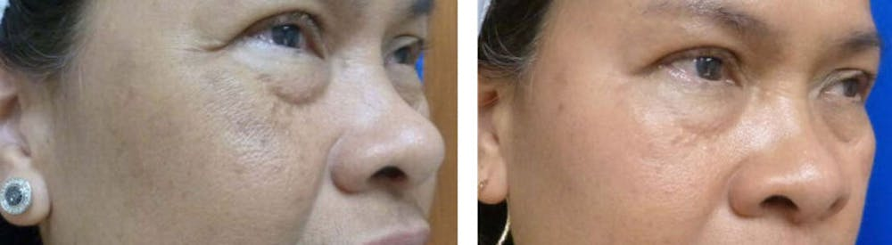 Medical Grade Chemical Peels Gallery - Patient 24560970 - Image 1