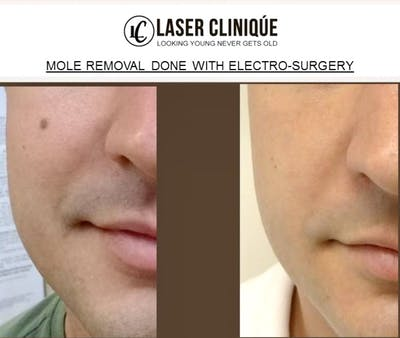 Mole Removal Gallery - Patient 24560971 - Image 1