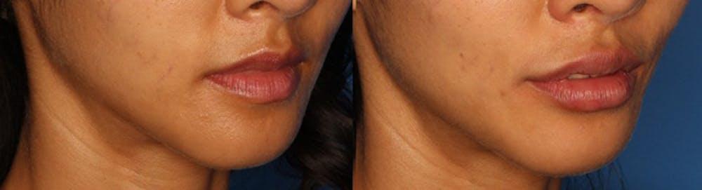 Lip Augmentation Gallery - Patient 24560972 - Image 3