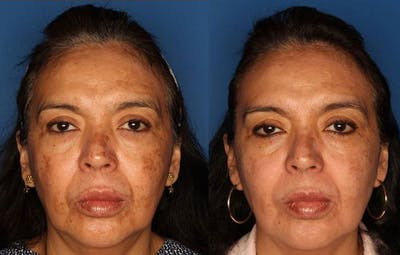 Medical Grade Chemical Peels Gallery - Patient 24560973 - Image 1
