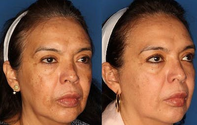Medical Grade Chemical Peels Gallery - Patient 24560973 - Image 2