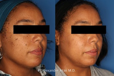 Mole Removal Gallery - Patient 24560975 - Image 1