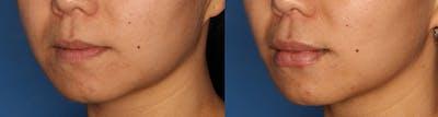 Lip Augmentation Gallery - Patient 24560974 - Image 2