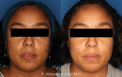 Mole Removal Gallery - Patient 24560975 - Image 2