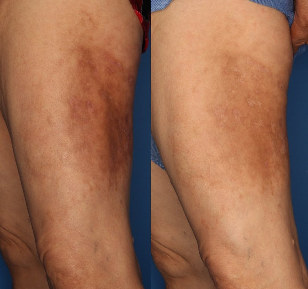 Medical Grade Chemical Peels Gallery - Patient 24560976 - Image 1