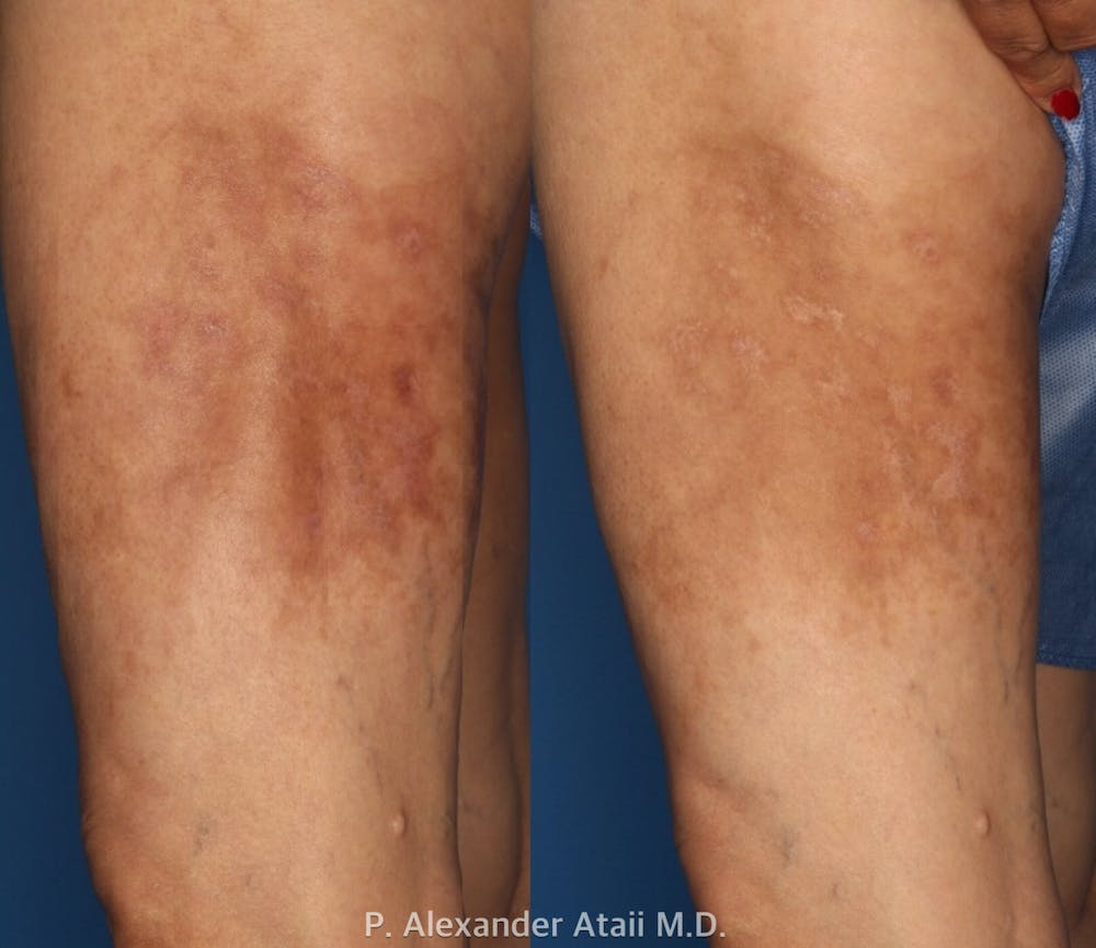 Medical Grade Chemical Peels Gallery - Patient 24560976 - Image 2