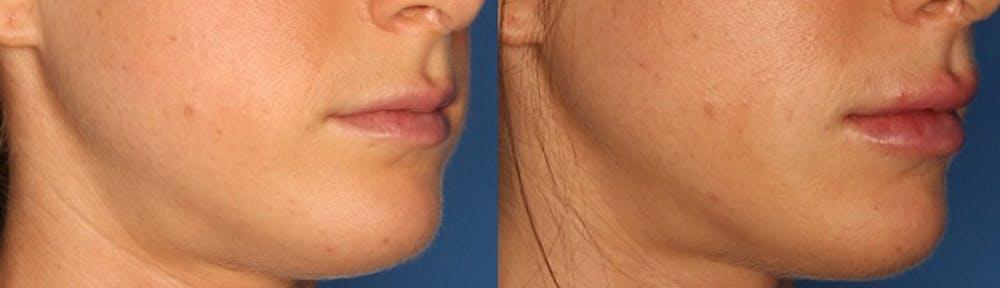 Lip Augmentation Gallery - Patient 24560977 - Image 1