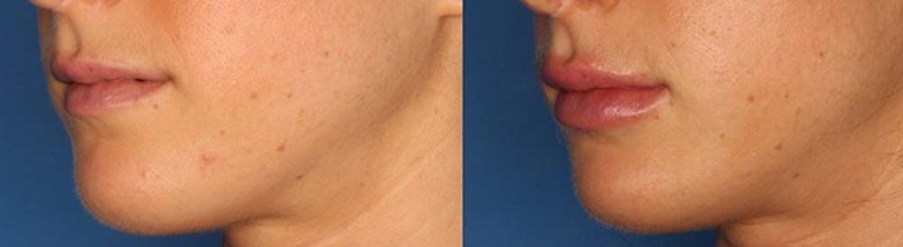 Lip Augmentation Gallery - Patient 24560977 - Image 2