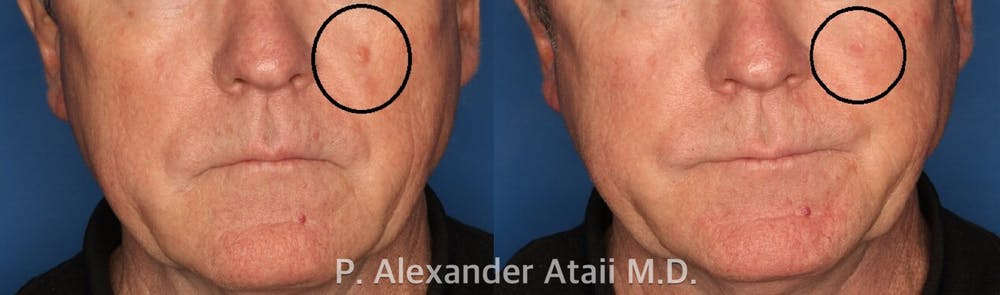 Mole Removal Gallery - Patient 24560978 - Image 1