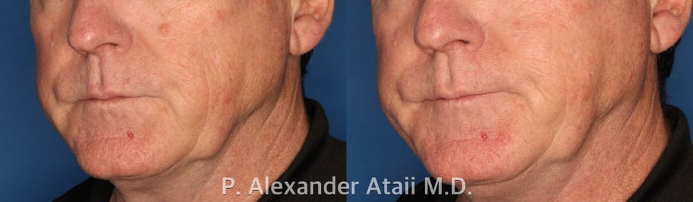 Mole Removal Gallery - Patient 24560978 - Image 2