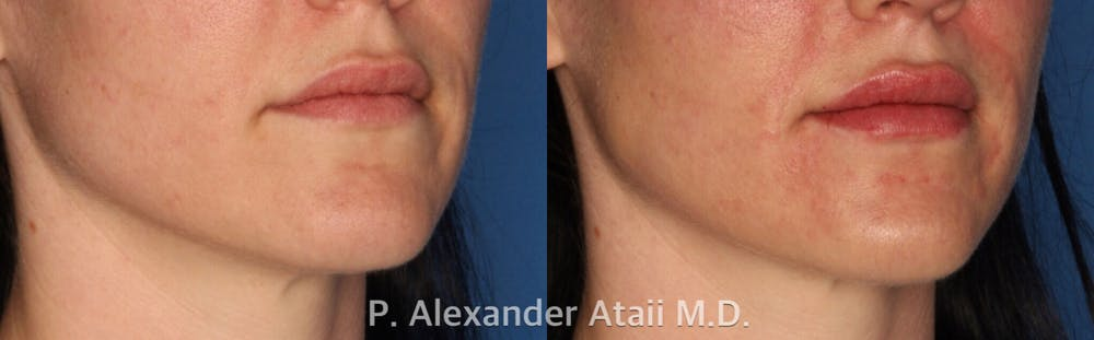 Lip Augmentation Gallery - Patient 24560981 - Image 1