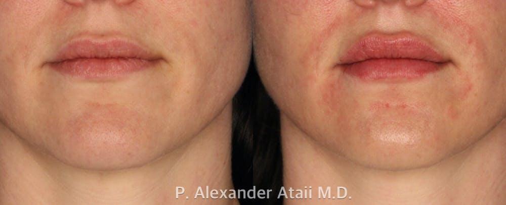 Lip Augmentation Gallery - Patient 24560981 - Image 2