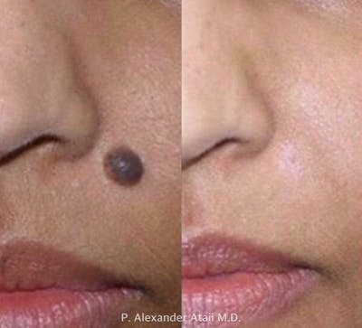 Mole Removal Gallery - Patient 24560979 - Image 1